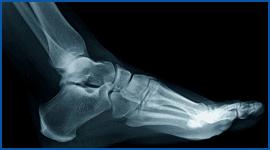 struttura ossea piede