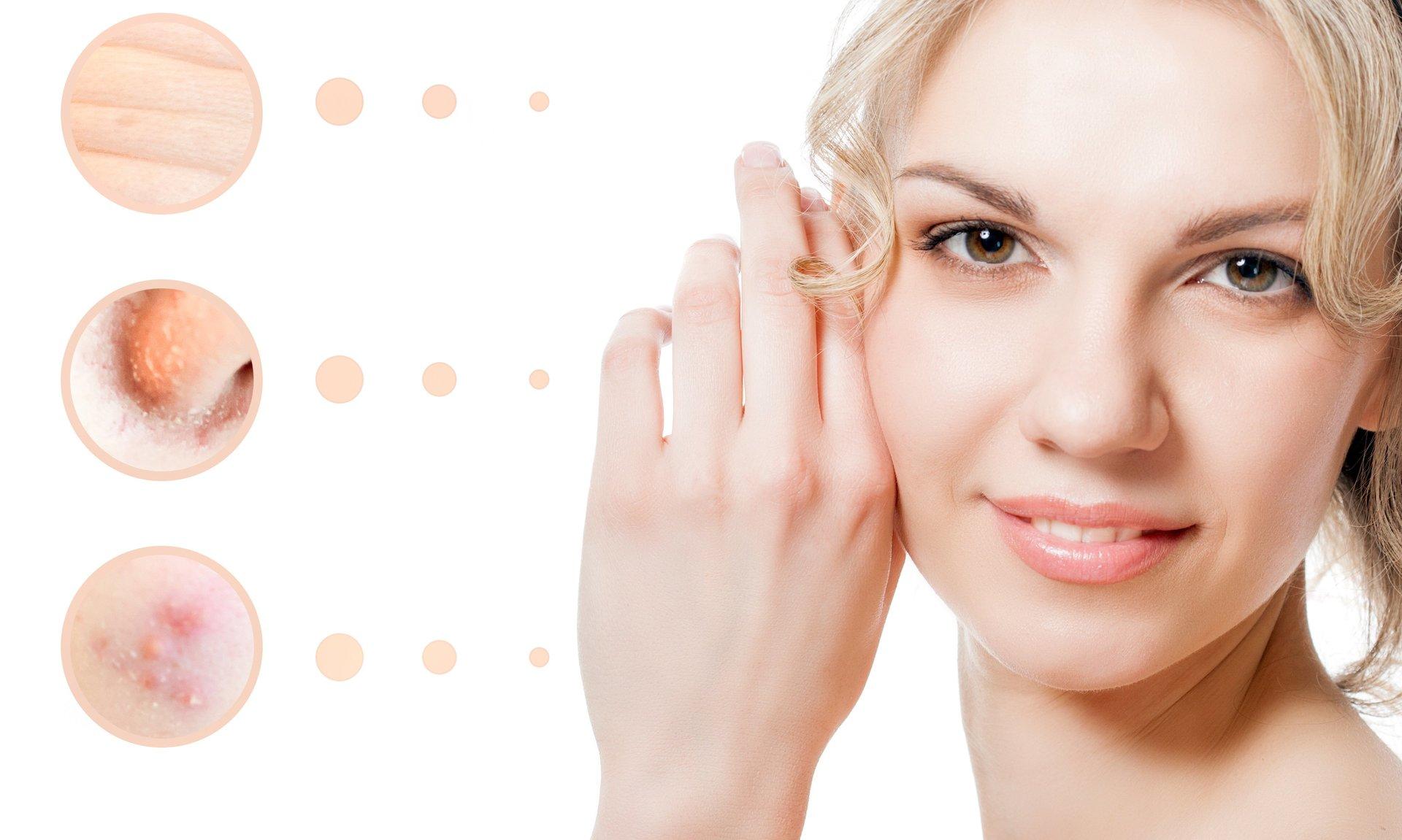 Skin Spa Med Dysport