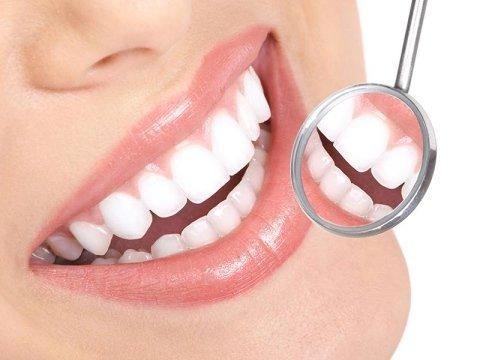 allineamento denti