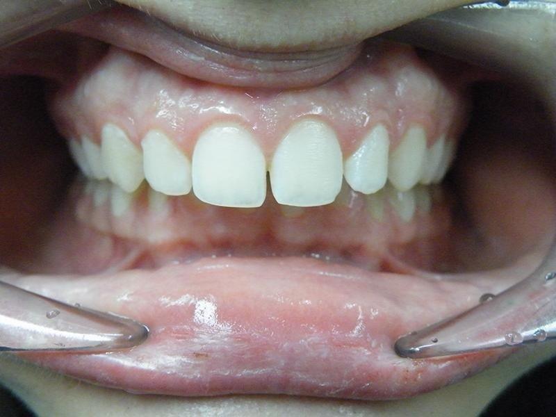 raddrizzamento denti - dopo