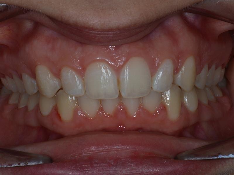 raddrizzamento denti - prima