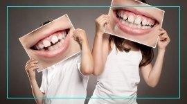 terapie gengivale, parodontite