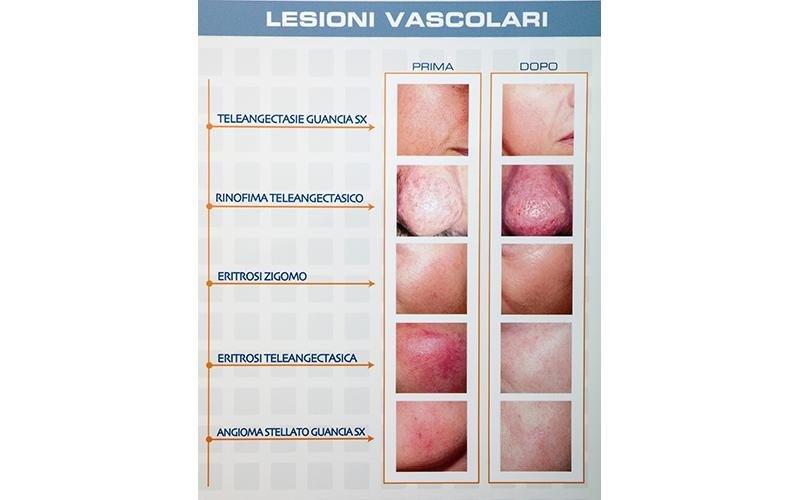 trattamenti lesioni vascolari