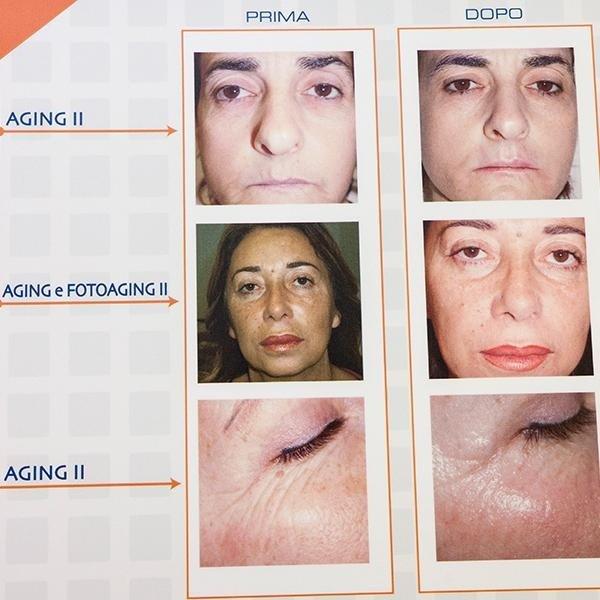 trattamenti anti aging