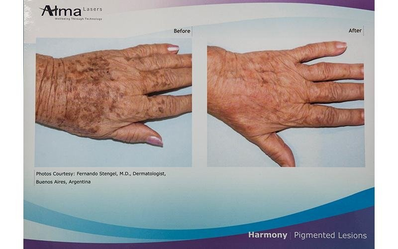 trattamenti luce laser per lesioni pigmentate