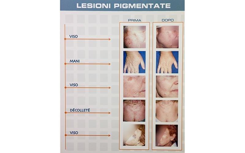 eliminazione lesioni pigmentate
