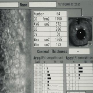 microscopia endoteliale