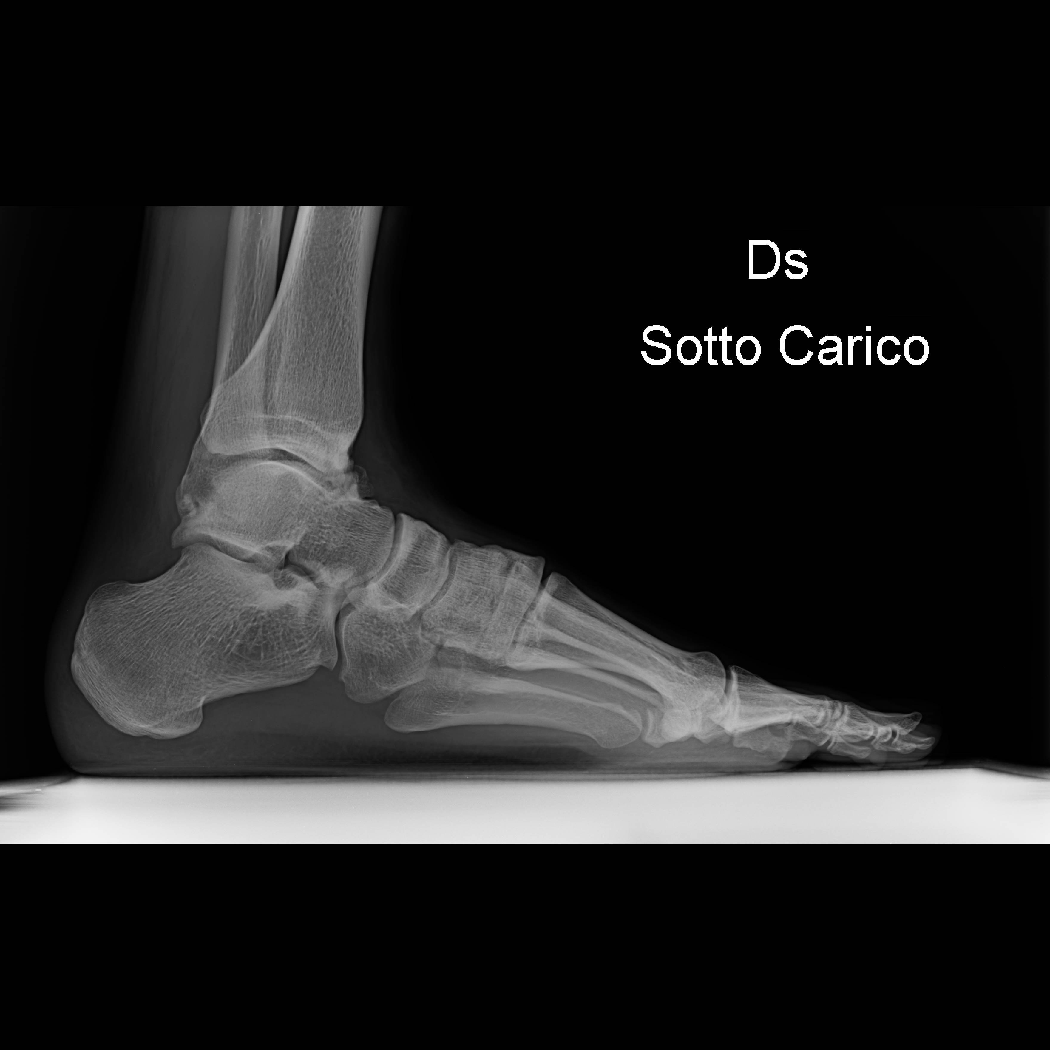 radiografia piede destro