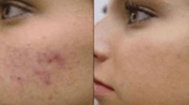 trattamento delle rughe, tumori della pelle, macchie cutanee