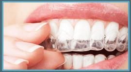 alligner denti