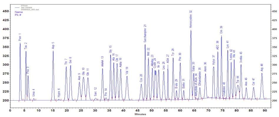 Analisi aminoacidi