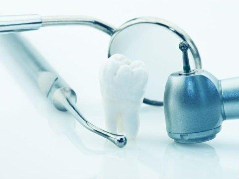 impianto denti