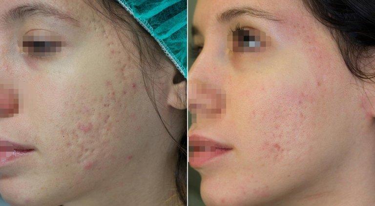 miglioramento della texture cutanea a seguito di trattamento con sedute di laser CO2 frazionato