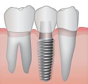 come scegliere impianti dentali