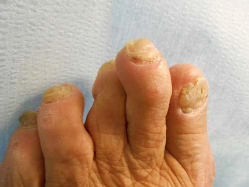 piede reumatico