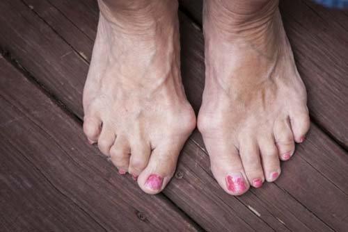 piedi con alluce valgo