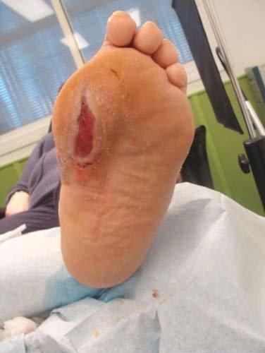 piede con ulcera diabetica