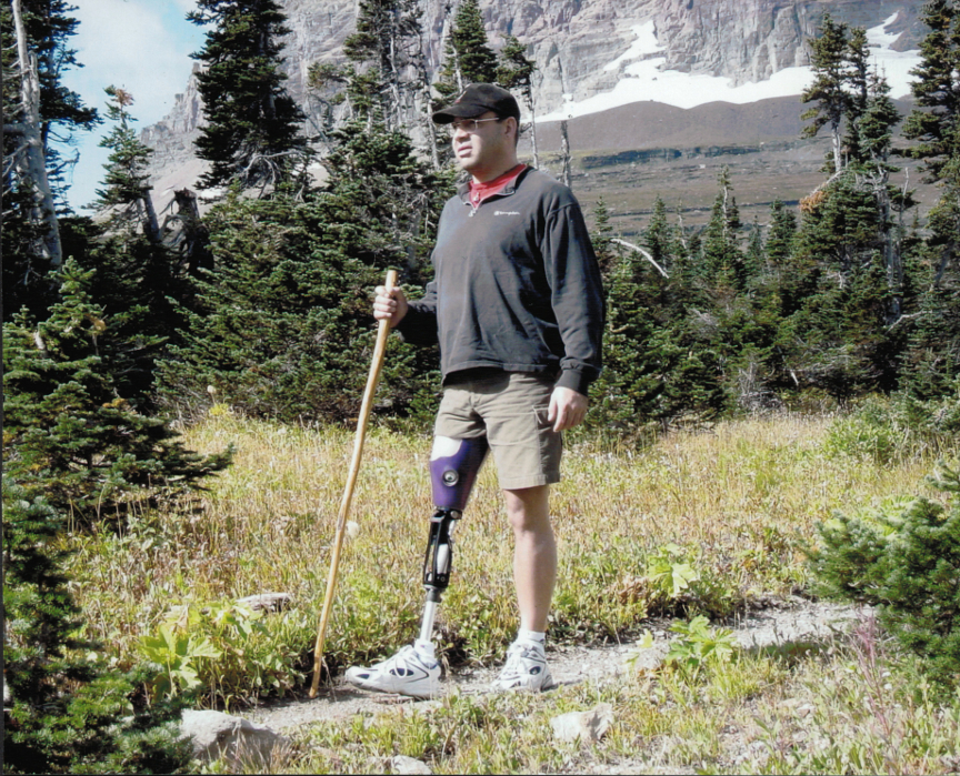 Patient with a right transfemoral amputation hikes with his Northern Care prosthesis in Glacier National Park.