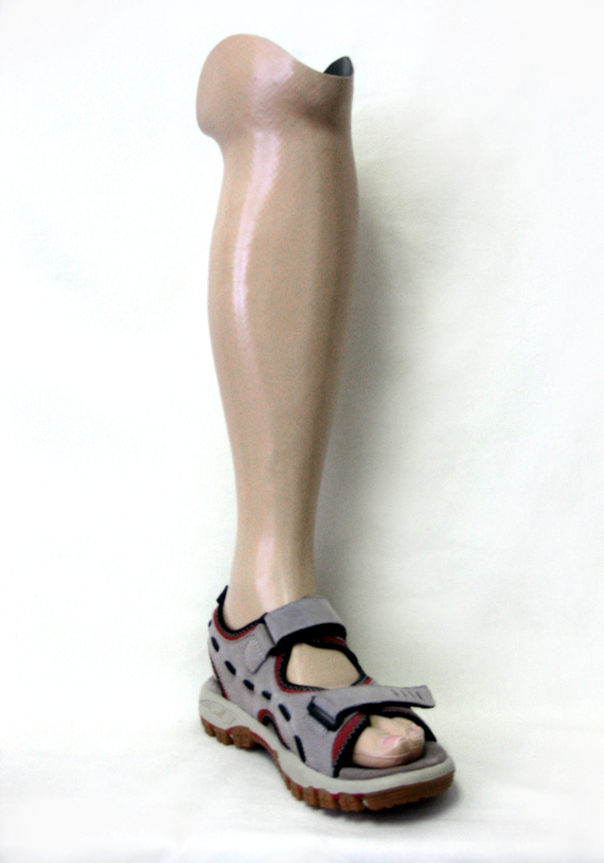 Below knee prosthesis suitable for water activities such as shallow range pool excercises and rafting. This hollow prosthesis features carbon lamination and the