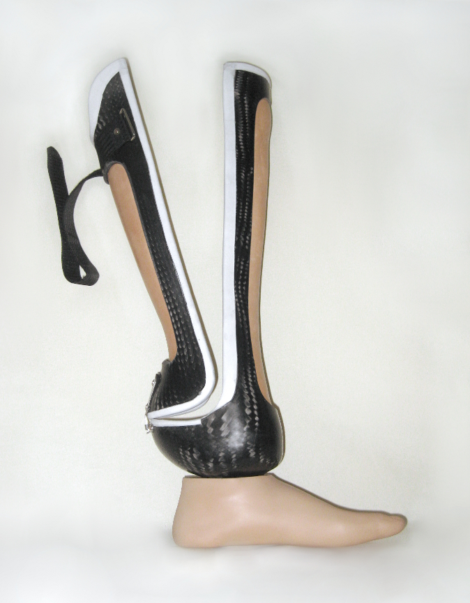 Prosthesis for a Chopart amputation of the foot at the heel