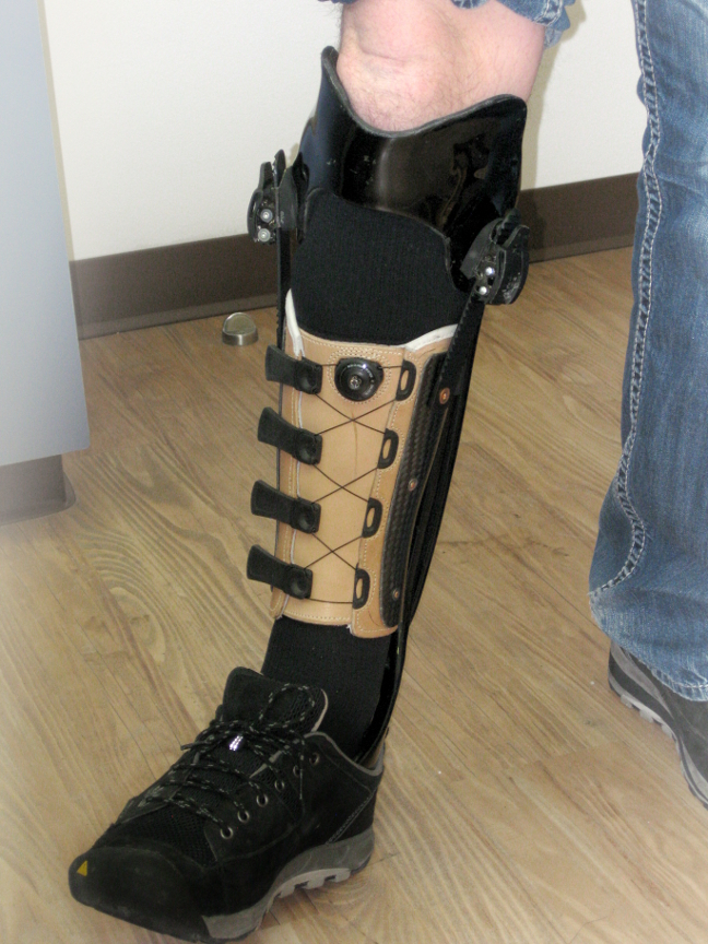 A triplanar AFO custom-designed to resolve pain from a traumatic ankle/foot injury. Incorporated is a leather corset style cuff.