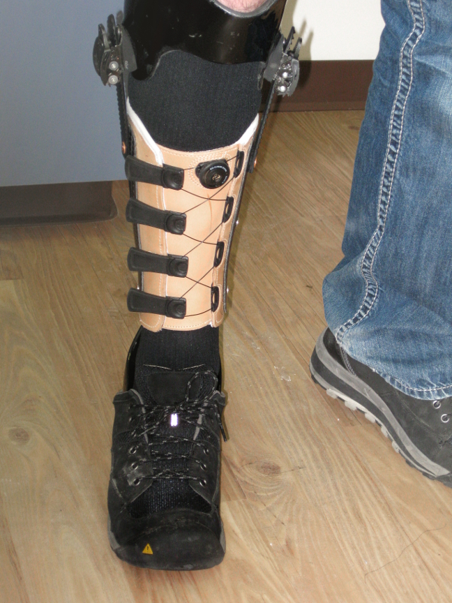 A triplanar AFO custom-designed to resolve pain from a traumatic ankle/foot injury. Incorporated is a leather corset style cuff.A triplanar AFO custom-designed to resolve pain from a traumatic ankle/foot injury. Incorporated is a leather corset style cuff.