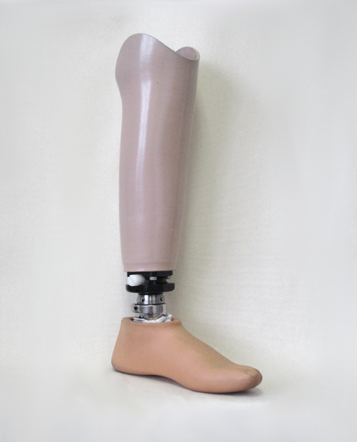 Custom Symes prosthesis with Ferrier Coupler feature allowing quick interchange between different feet