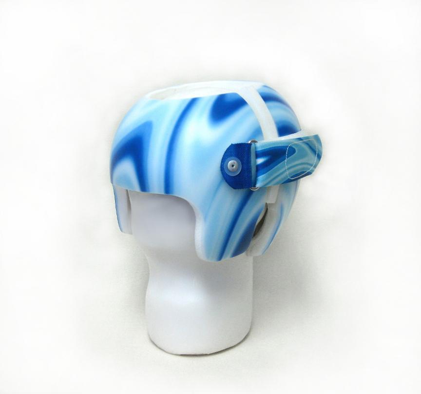 cranial remolding helmet in Bigfork, MT