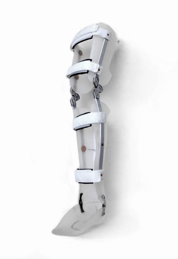Knee ankle foot orthosis (KAFO) leg brace in Bigfork, MT