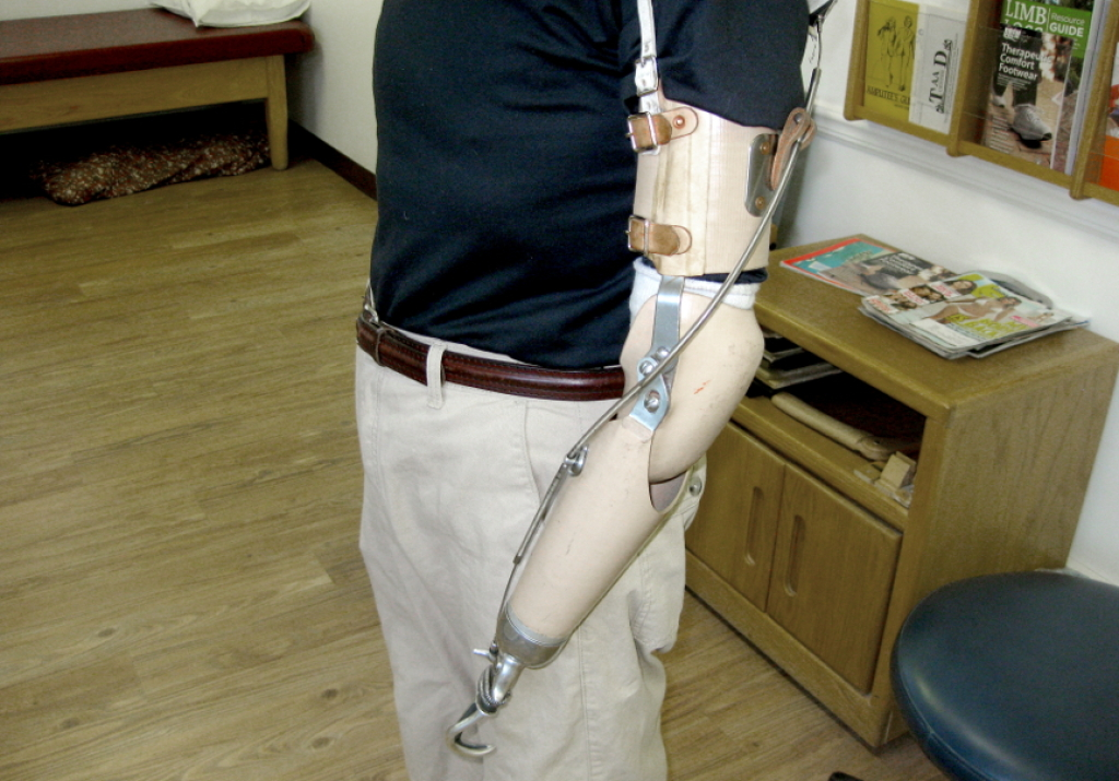Transradial prosthesis for short below elbow amputation