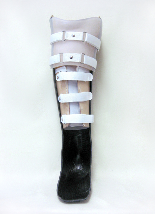 Patellar Tendon Bearing (PTB) unloader brace for a severe ankle fracture. This brace features carbon lamination, a leather corset, and PTB suspension.