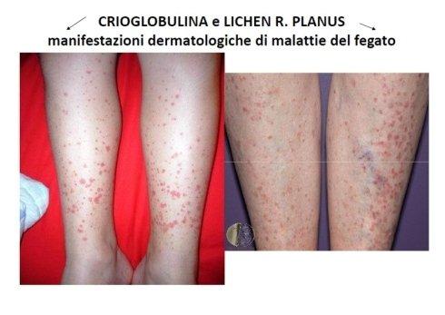 crioglobulina
