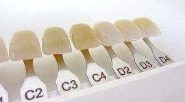 personalizzazione materiale protesi, colore protesi, smalto dentiere