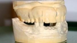 Protesi ai denti