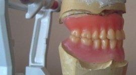 riparazioni su protesi, interventi dentiere, dentarie combinate