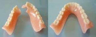riparazione dentire