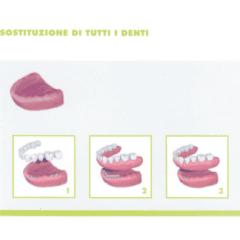 Sostituzione dentale completa