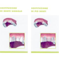 Sostituzione dentale