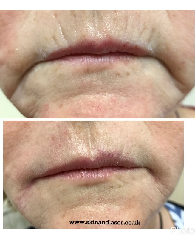 Harley Street Skin and Laser Clinic- upper lip lines before and after fillers