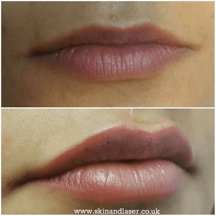 before and lip filler-Harley Street Skin and Laser Clinic-