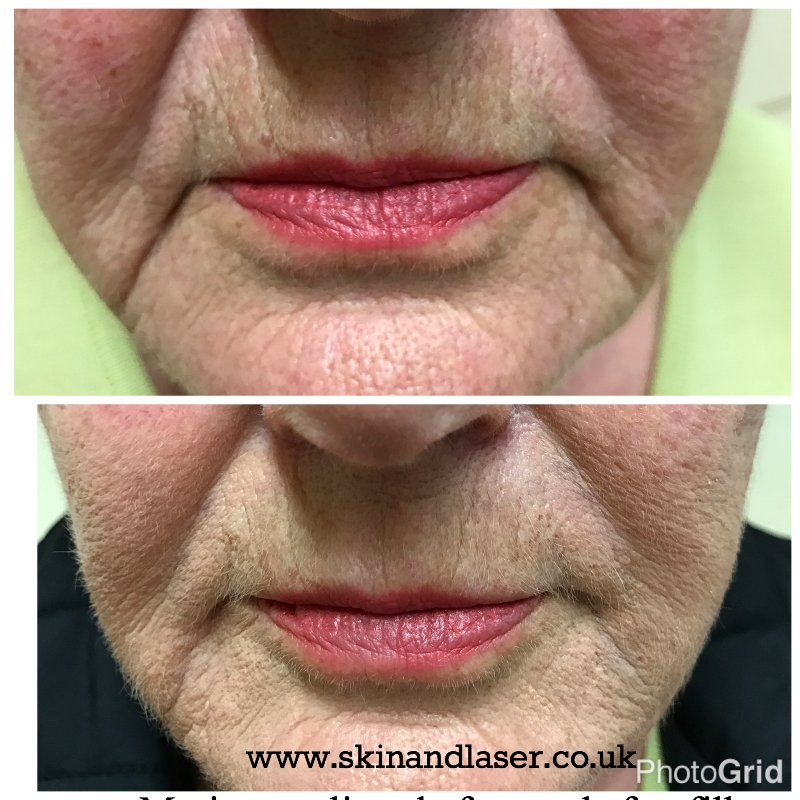 Harley Street Skin and Laser Clinic- marionette lines with Dermal fillers
