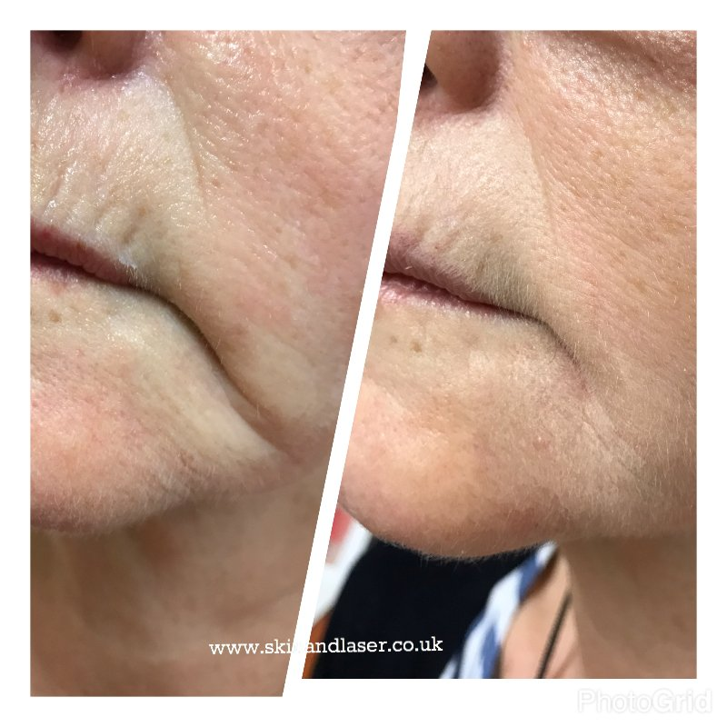 before and after Filler treatment Marionette line