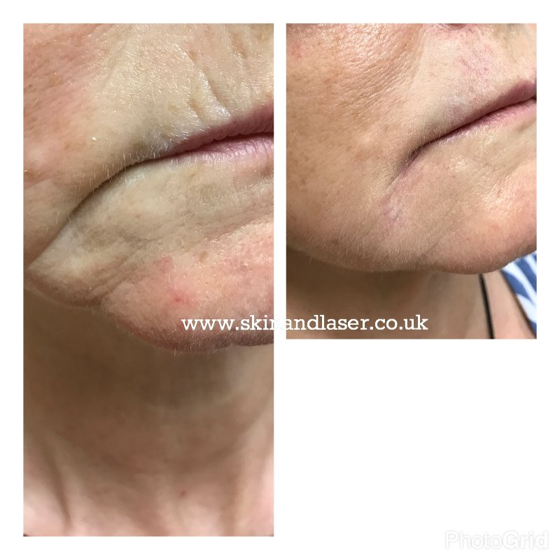 Harley Street Skin and Laser Clinic- marionette lines treated with fillers