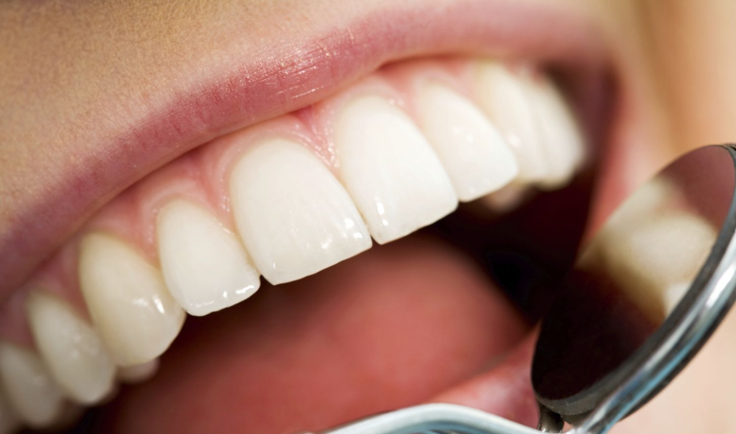 Healthy smile of patient visiting our dental practice in Winder, GA