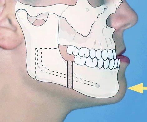 Ortodonzia pre-Chirurgica
