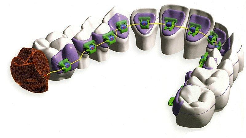 scansione arcate dentali, creazione archi ortodontici robotizzati, ortodonzia