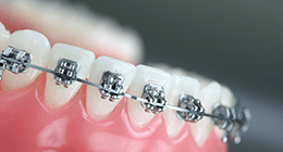 riposizionamento denti