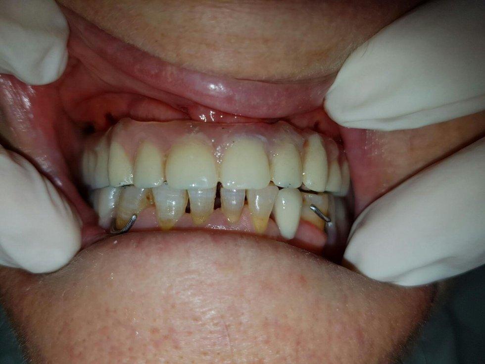 Implantologia carico immediato