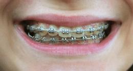 macchinetta ortodontica