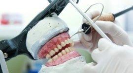 creazione protesi odontoiatriche